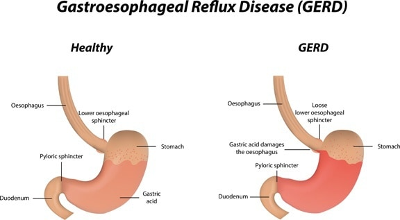 How to get rid of gas and bloating guide i know some of you hate doctors and hospitals and youd rather google your symptoms instead of calling your physician but i dont want you to end up with ccuart Image collections