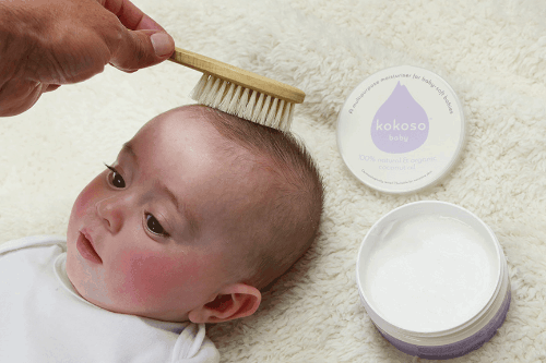 Everything About Cradle Cap And How To Get Rid Of It