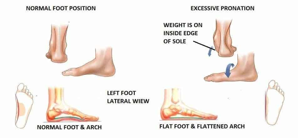 Below is an in-depth review of footwear options and features you should  keep an eye out for in your selection. Paying attention to these details  can help to ... 396fb508ab43